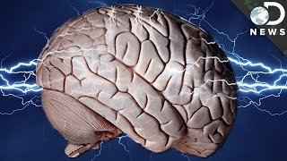 Can Shocking Your Brain Make You Smarter?