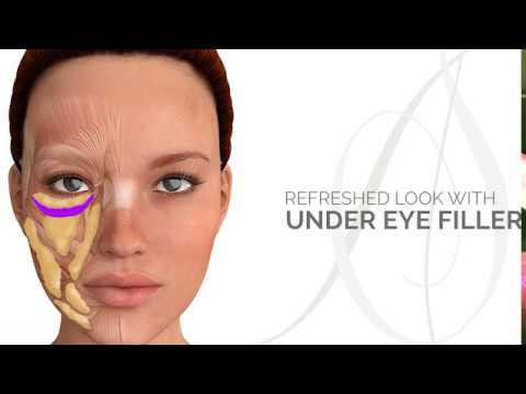 Having a Refreshed Look With Under Eye Filler