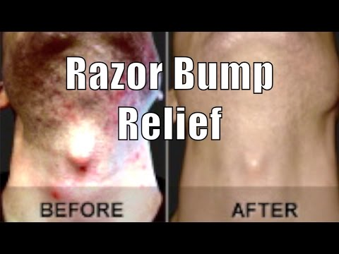 ASPIRIN RAZOR BUMP RELIEF | Cheap Tip #8