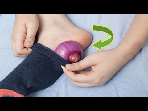 Put Onion in your socks And This will Happen