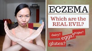 5 WORST vegetables for eczema healing // Michelle Mills