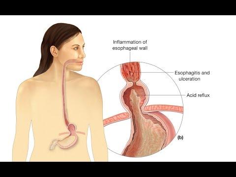Umbilical Hernia | Hernia symptoms | Home Remedies for Hiatal Hernias