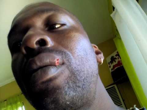 I Am Kangen Health: Split lip. The healing process...