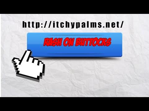 ItchyPalms-Rash On Buttocks
