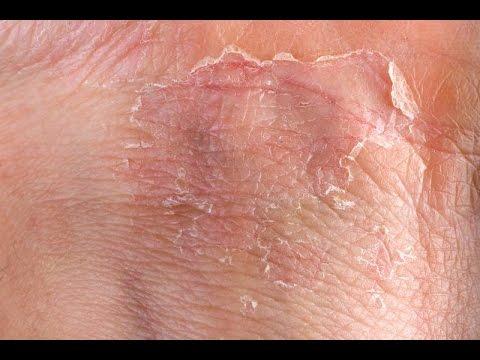Eczema (GRAPHIC) Fast Outbreak Treatment Options | Eczema Dermatitis Rash Treatment 2015