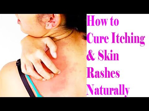 3 Most Effective And Easy Home Remedies For Itchy Skin | How to Cure Itching & Skin Rashes Naturally