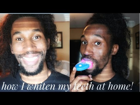 Teeth Whitening|How I Whiten My Teeth at Home!