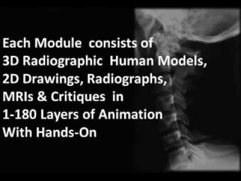 Spinal Radiology in Virtual Animation - World's 1st Animated Radiology Workshop for Physiotherapists