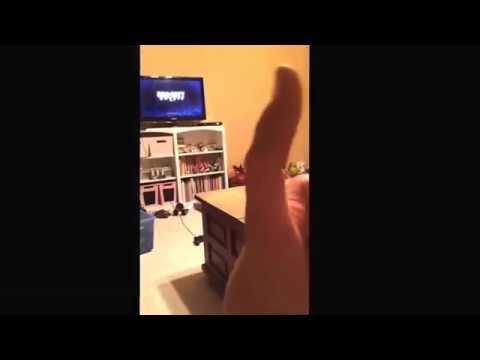 Thumb broken