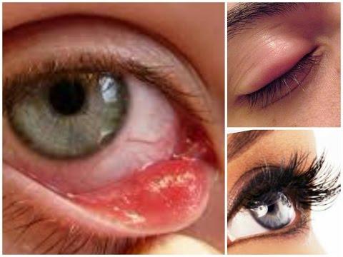 easiest way to get rid of eye stye
