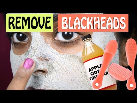 How To Get Rid Of Blackheads & Large Pores Naturally At Home! DIY Shrink Pore Beauty Secrets