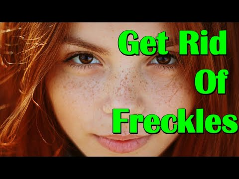How To Get Rid Of Freckles Naturally and Fast