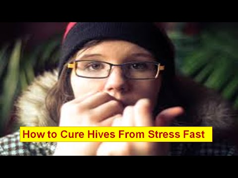 Stress Hives – How to Cure Hives from Stress Fast