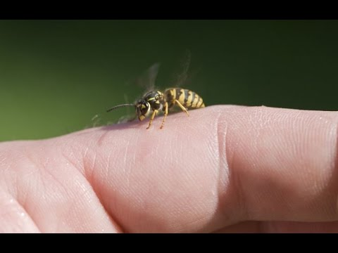 Home Remedies to Get Rid of Wasp Sting
