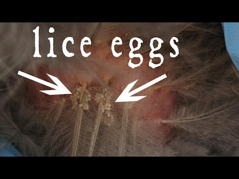How to Remove Dead Lice Eggs From Hair