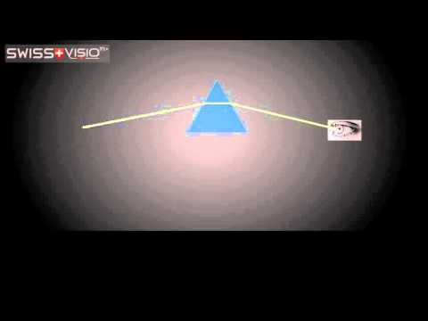 Glasses Prescription: Prism and Base Explained