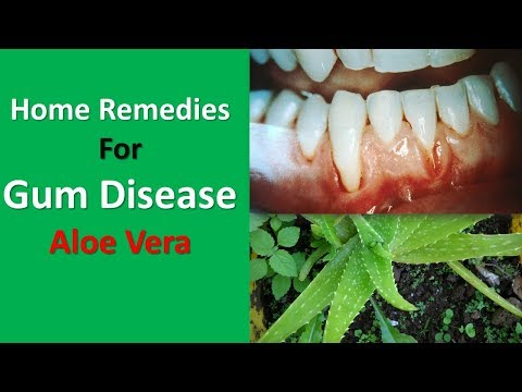 Home Remedies For Gum Disease|Aloe Vera, Oil Pulling