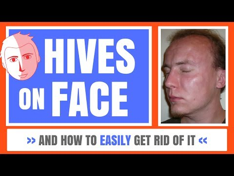 Hives On Face - And How To Easily Get Rid Of It