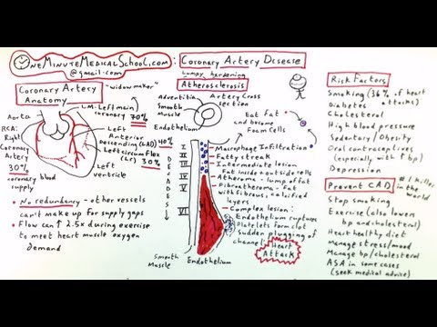 Coronary Artery Disease: Cause of Heart Attack - One Minute Medical School