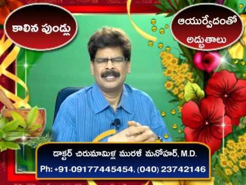 Burns | Sure Cure | Telugu | Dr. Murali Manohar Chirumamilla, M.D. | Ayurveda