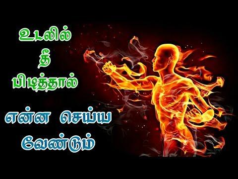 உடலில் தீ பிடித்தால் என்ன செய்ய வேண்டும் | Udalil thee piditthaal