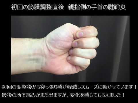 親指側の腱鞘炎【ドケルバン病】に筋膜調整した結果 仙台の整体ならルーツ