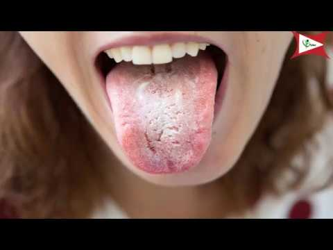 Remove those white patches on your tongue