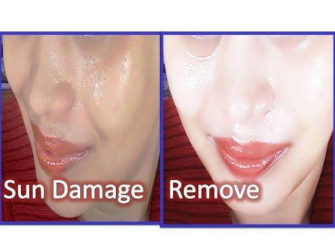 Remove Dark Spots by Sun Damage on face ( Demo )