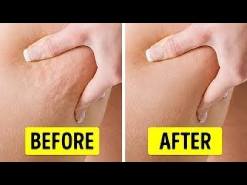 6 Exercises to Get Rid ofCellulite in2 Weeks STRANGE INFORMATION