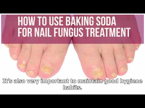 How to cure toenail fungus with apple cider vinegar -