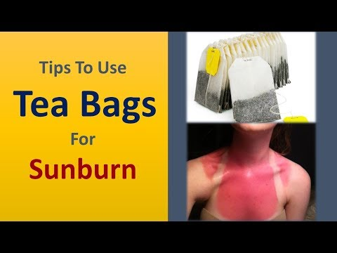Tips To Use Tea Bags For Sunburn - How To Treat Sunburn Naturally