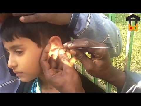►Cute Baby Hard Earwax Removal-Dirty Stone Removed