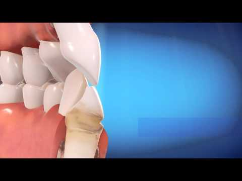Periodontal disease treated with Invisalign - Brooklyn Dental - Dr. Amirian,718-624-1970
