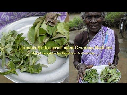 Jaundice&Piles treatment grandma medicine |  Jaundice Medicine in Ayurveda