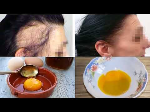 Magic Recipe For The Fastest Hair Growth Naturally HEALTH NEWS