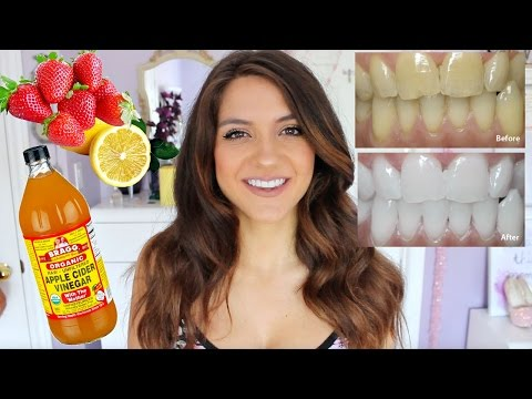 How to WHITEN YOUR TEETH | DIY Teeth Whitening FAST + CHEAP!
