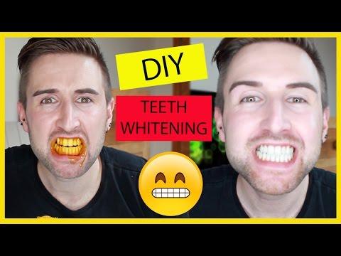 DIY EASY HOME TEETH WHITENING!!!!!!!!