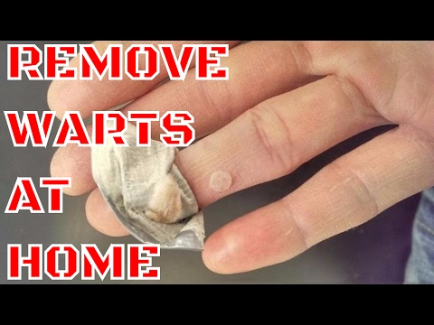 WART REMOVAL - HOW TO REMOVE WARTS AT HOME