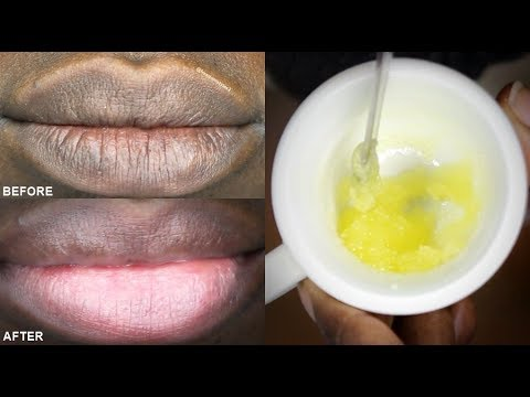 Get Soft Pink Lips Naturally Easy Way at Home 100% working
