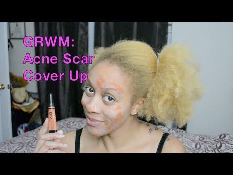 GRWM: Acne Scar Cover Up
