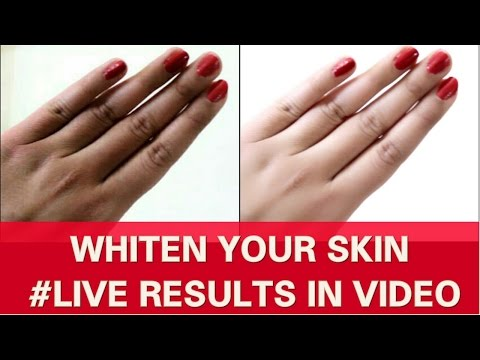 FAIR HANDS & LEGS QUICKLY-SKIN  WHITENING TREATMENT | RESULTS IN LIVE VIDEO