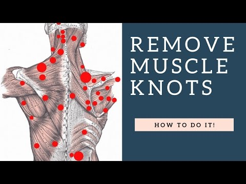 BEST Way To Fix Shoulder Knots / Myofascial Trigger Points In Your Trapezius Muscle To Stop Pain!