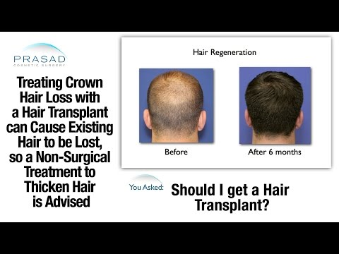Male Pattern Baldness at the Crown can be Treated without a Risky Hair Transplant