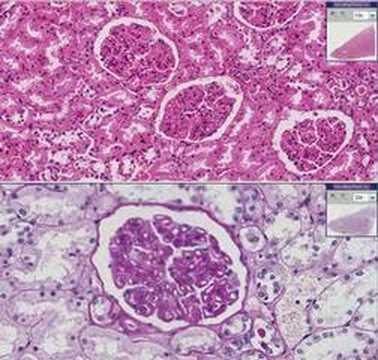 Histopathology Kidney--Membranous glomerulonephritis