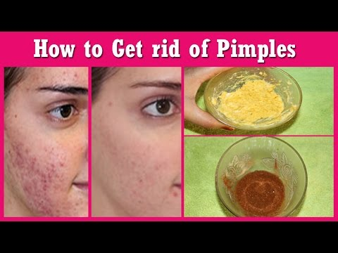 सिर्फ 2 दिन में मुहासे गायब/How to Remove Pimples, Acne Permanently in 2 Days / 100% Work