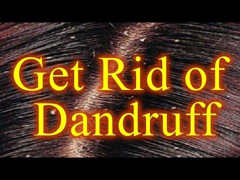 Get Rid of Dandruff | Natural Ayurvedic Home Remedies