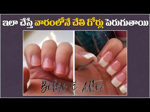 5 Ways to Grow Your Nails FAST In Telugu | Grow Nails Naturally | Telugugirlchannel Sruthi