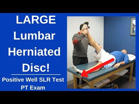 Lumbar herniated disc with positive well straight leg raise test