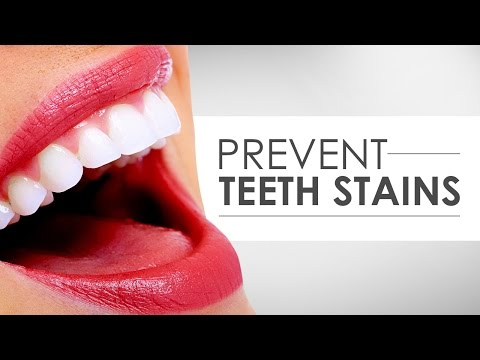 How to Prevent Teeth Stains
