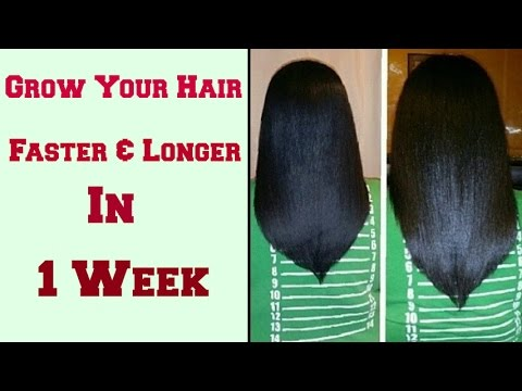 How to Grow Your Hair Faster & Longer in 1 Week || Natural Remedy at Home
